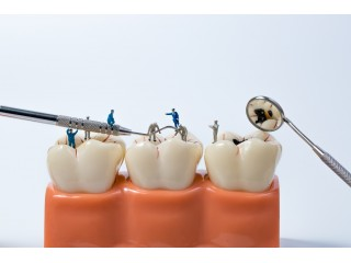 Как правильно ухаживать за зубами: полезные советы