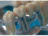 Штифты Стоматологические